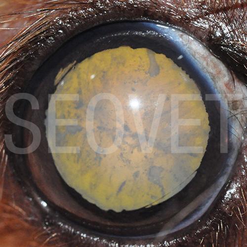 Catarata inmadura. Catarata madura. Lente intraocular 6fb73f7620